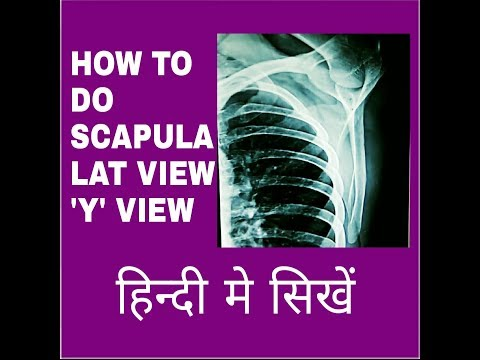 SCAPULA TRUE LAT VIEW 'Y' VIEW, ANATOMY & PHYSIOLOGY PART-110