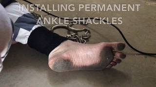 Installing Permanent Ankle Shackles