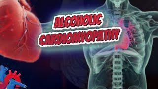 Alcoholic cardiomyopathy (Human Heart ❤️ & Cardiology) ❤️🔊✅
