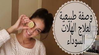 👀 Recette naturelle contre les cernes-وصفة طبيعية لإزالة الهالات السوداء👀