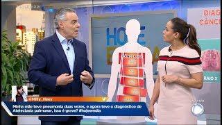 Doença vasculite pulmonar pulmonar