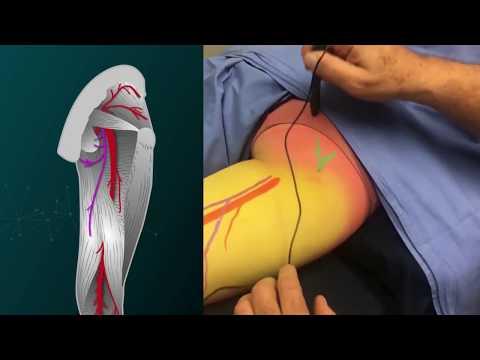 Lumbar and Sacral Plexus Drawingиз YouTube · Длительность: 4 мин23 с