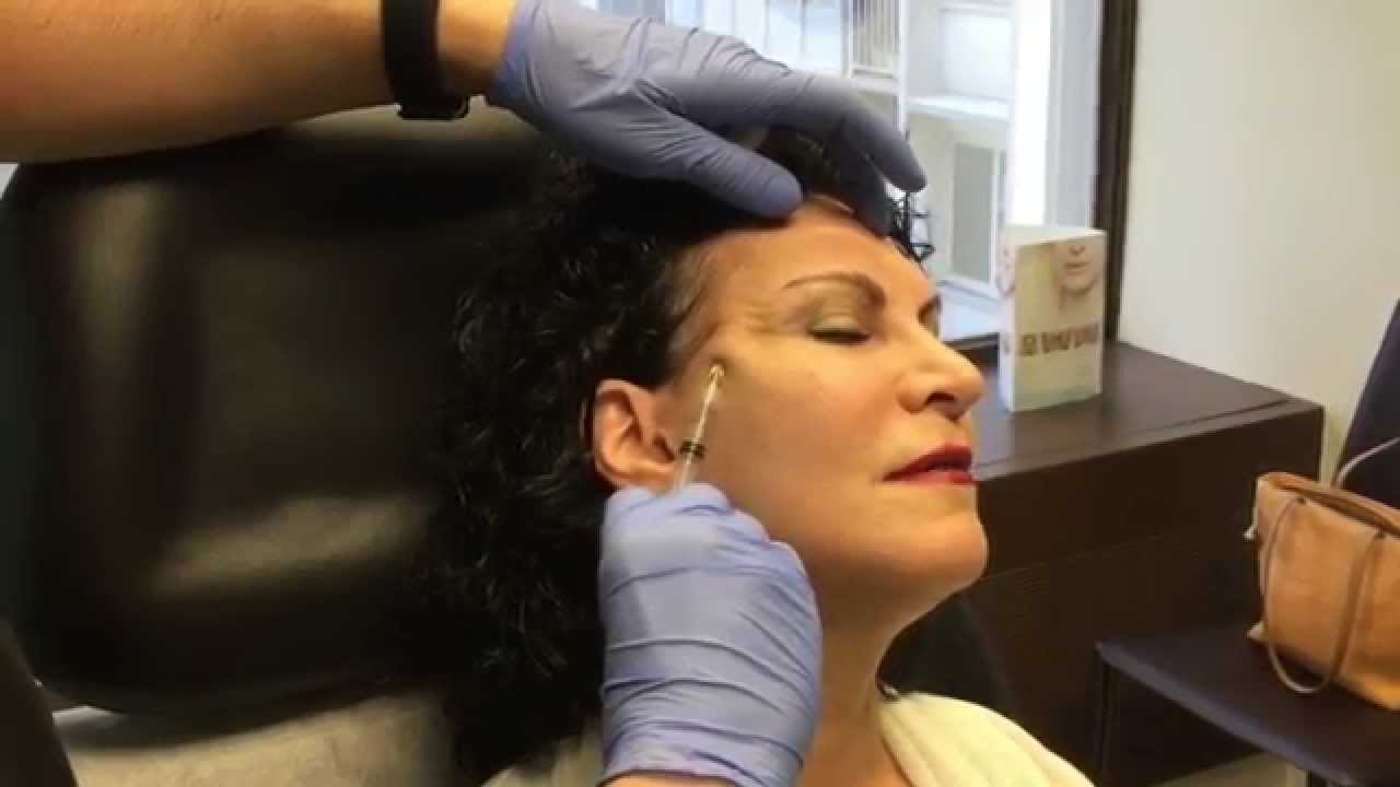 Blunt Cannula Technique Filler Injection to Temple Hollows - YouTube