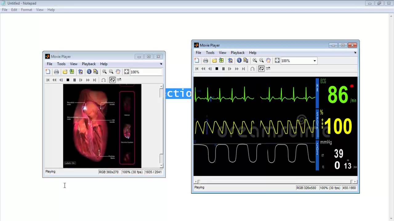 ECG Signal Processing Matlab Code Projects