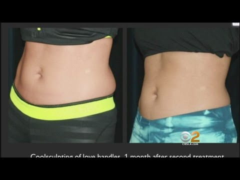 Freezing Helps Remove Fat Without Surgery