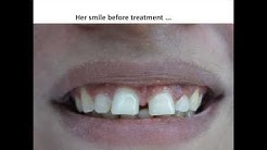 Complete Smile Makeover Case Done at Best Dental Clinic in India