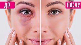 💥Топ 5 эффективных лайфхаков: круги и мешки под глазами
