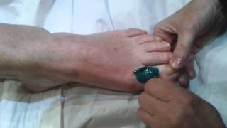 Baixar Toe wax with Berodin