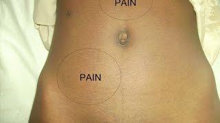 Appendicits