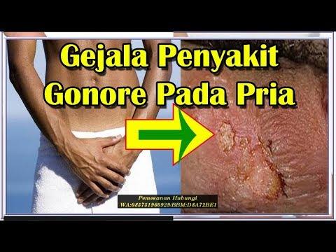 cara-meredakan-gejala-penyakit-gonore-pada-pria