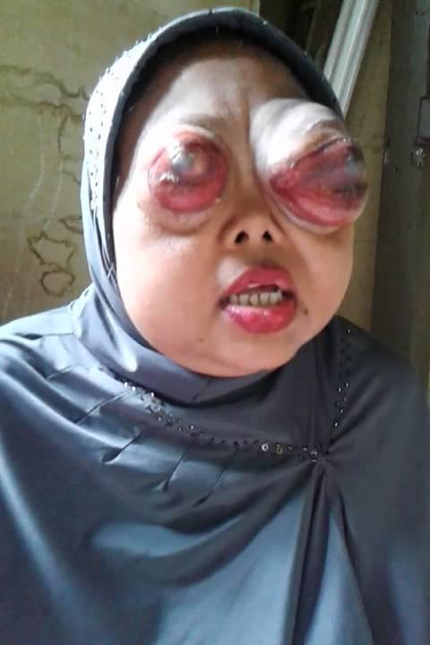 Mohon bantuan ibu napila kena kanker mata - YouTube