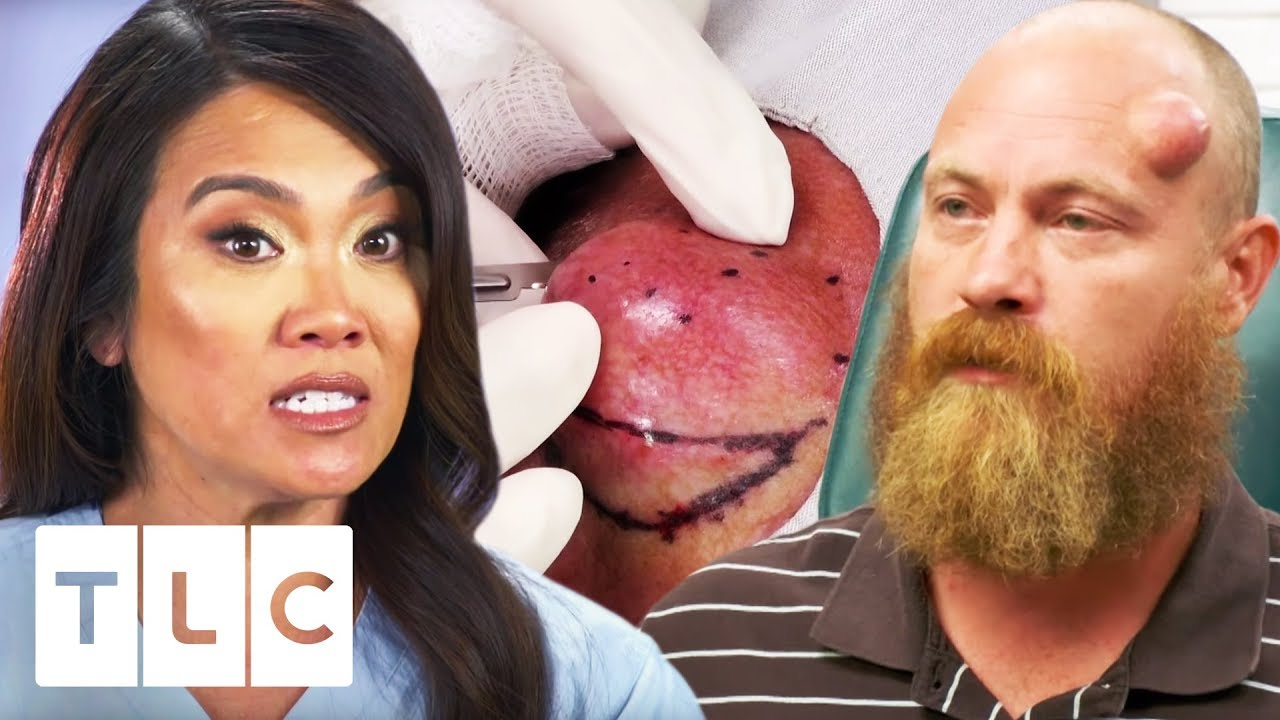 Dr  Lee Squeezes An 18 Year Old Cyst! | Dr  Pimple Popper