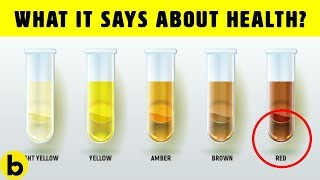 What The Color Of Your Urine Says About Your Health
