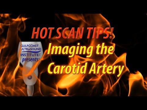 Hot Tip - Imaging The Carotid Artery
