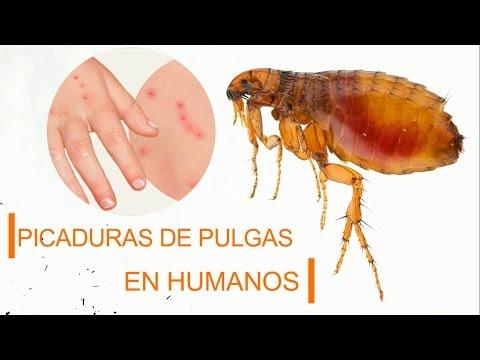 Picaduras de pulgas en humanos