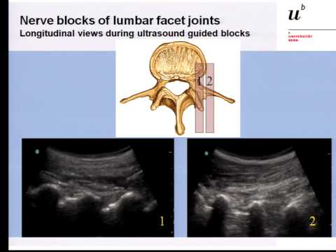 Pain Medicine - Lumbar Medial Branch, Facet Joint and Nerve Root Blocks