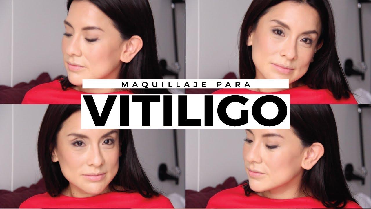 3bb403a82 Vitiligo: mis correctores y bases favoritas