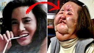 Жертвы Пластической Хирургии До и После Самые Страшные Случаи Пластики ТОП Майкл Джексон Сталлоне