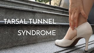 Tarsal tunnel syndrome: Everything you need to know.
