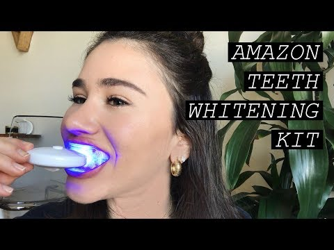 Amazon Teeth Whitening Kit! Does MySmile Really Work? | Carly Rivlin