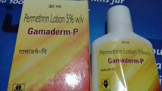 Gamaderm - P Lotion किसी तरह की दाने वाली खुजली को ठीक करे तुरन्त । पूरी जानकारी हिंदी में