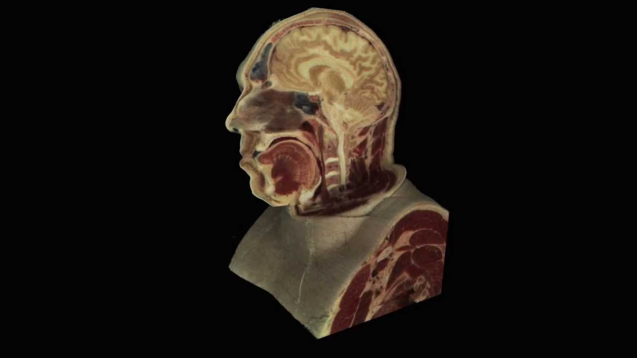 The Visible Human Project - head of male cadaver - YouTube