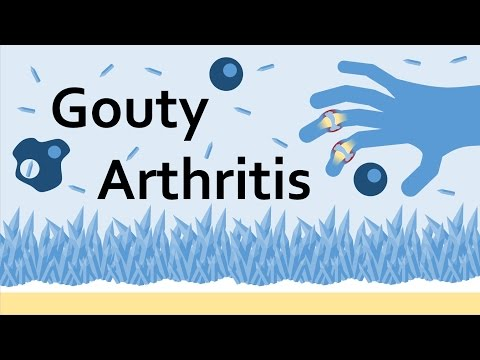 Gouty Arthritis (Gout) and Uric Acid