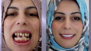 شاهدو كيف تغيرت حياة هذه الفتاة في دبي خلال 40 يوم