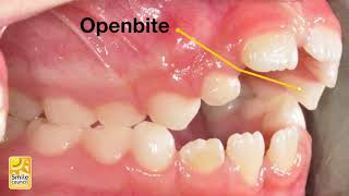 How Thumb Sucking Affects Children's Teeth