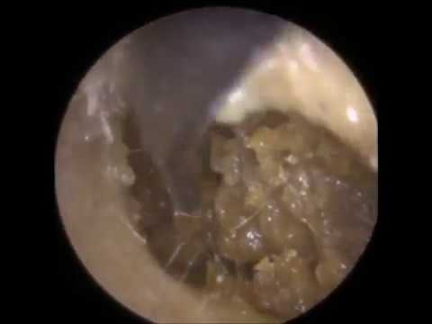 Removing Ear Wax from inside a GP's Ear! - Mr Neel Raithatha (The Hear Clinic)