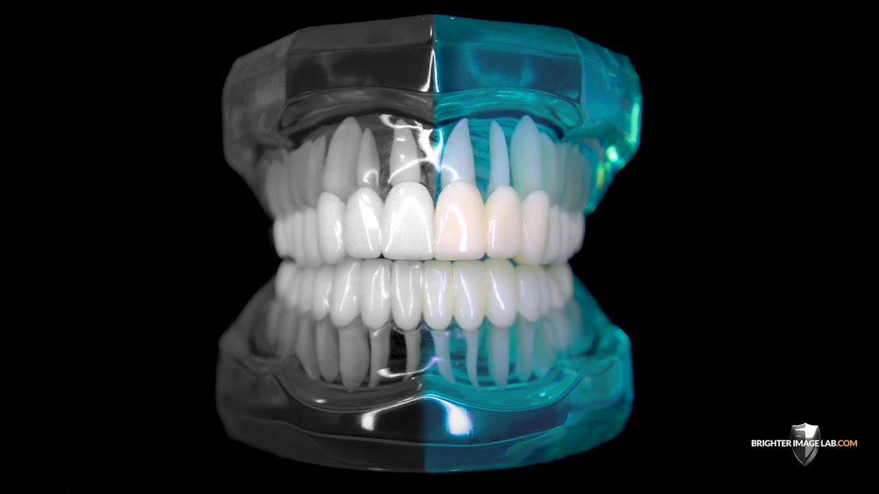 Compare to Dental Implants or Invisalign – No Cosmetic Dentist Can Beat Brighter Image Lab!