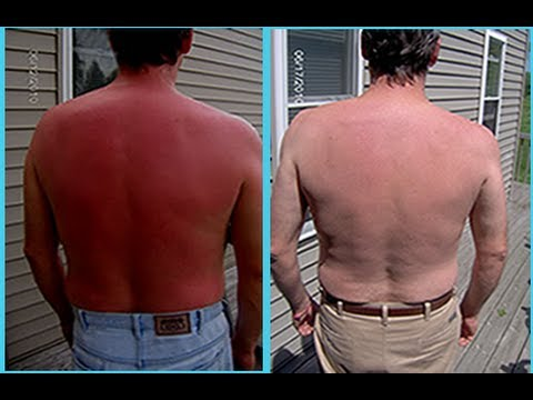 How can I quickly treat sunburn?