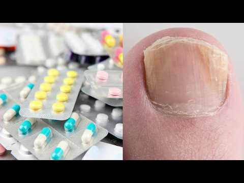 Таблетки от грибка ногтей на ногах - ТОП 20 средств, которые помогут забыть о грибке ногтей
