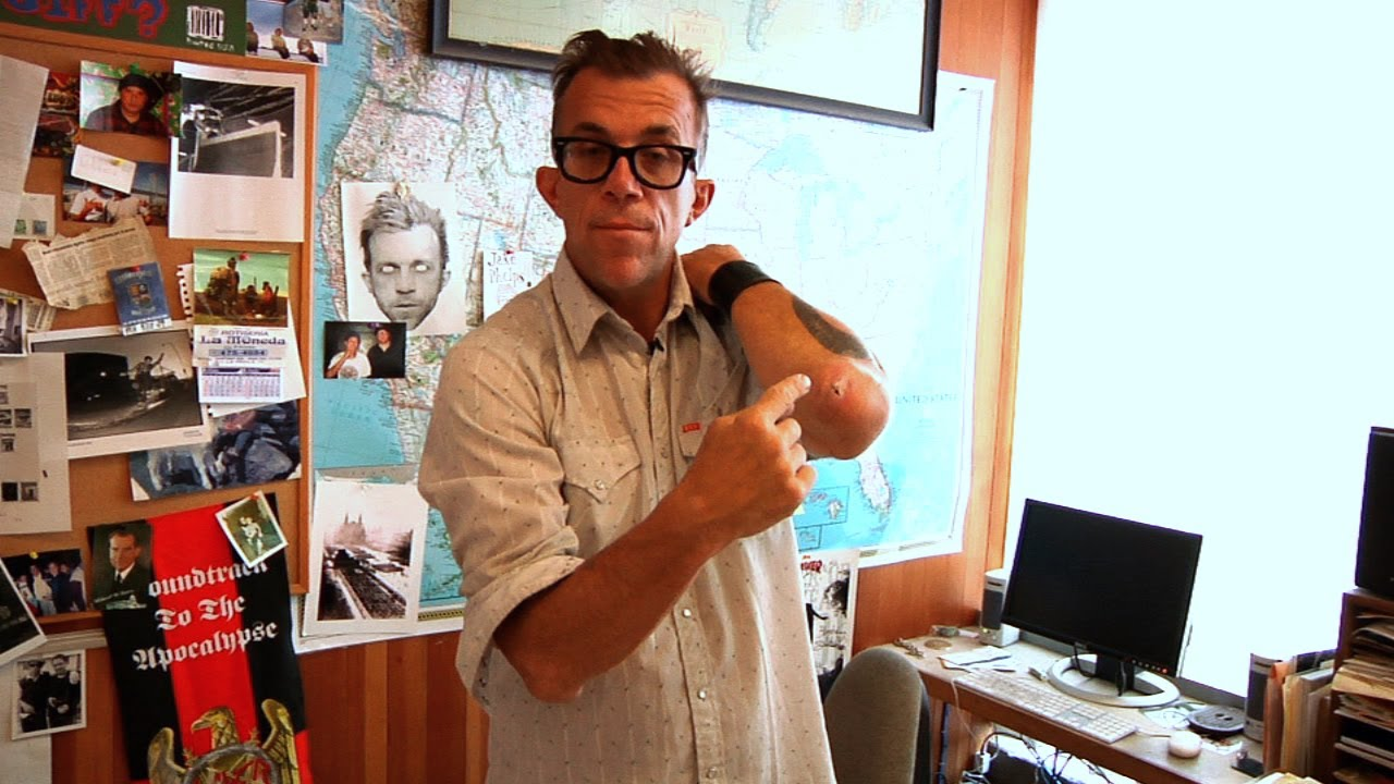 Jake Phelps Picture: Psychic Surgery
