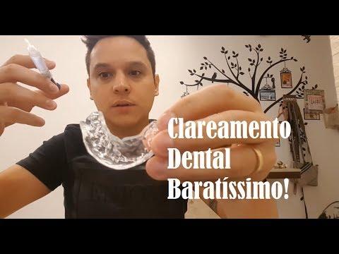 Clareamento Dental Aliexpress Mercado Livre 44 Funciona Mesmo E