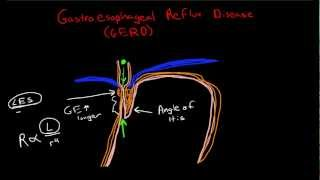 Pathophysiology of Gastroesophageal Reflux Disease (GERD)