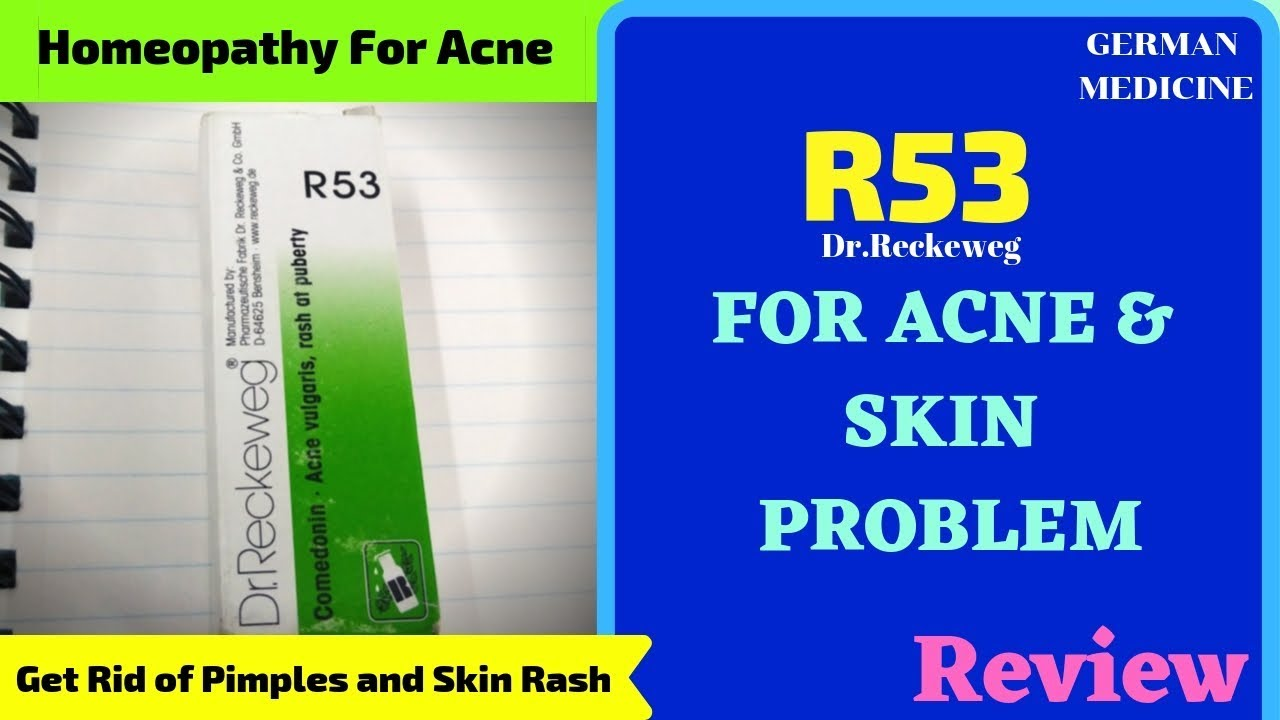 R53: Homeopathic Medicine for Acne Pimples In Hindi| Dr Reckeweg