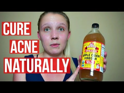 cure-acne-naturally-with-apple-cider-vinegar│danielle-ruppert