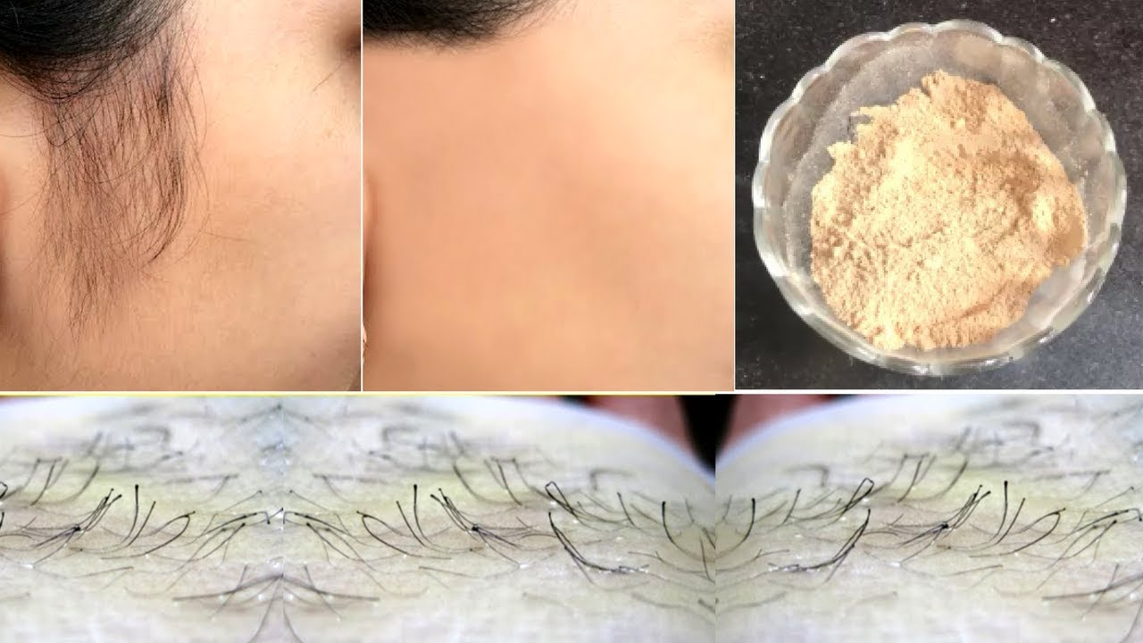 Facial Hair Removal Powder Remove Unwanted Hair Naturally