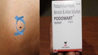 PODOWART Review HINDI /WART REMOVAL Medicine
