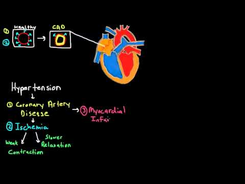 Pathophysiology of Heart Failure Part 1