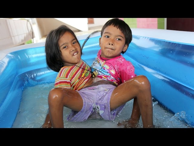 Together Forever Conjoined Twins Don T Want To Be Separated Youtube