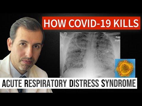 How Coronavirus Kills: Acute Respiratory Distress Syndrome (ARDS) & COVID-19 Treatment