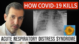 How Coronavirus Kills: Acute Respiratory Distress Syndrome (ARDS) & COVID 19 Treatment