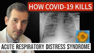 How Coronavirus Kills: Acute Respiratory Distress Syndrome  Ards  & Covid-19 Treatment