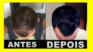 Hairloss Blocker Antes e Depois - Resultado de 9 Meses