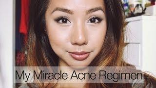 Acne.Org Regimen Experience & Important Skincare Tips (for all skin types) | shannonleiMUA