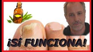 Como quitar los Hongos en las uñas de los pies. thumbnail