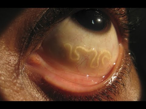 Living Organisms inside your body documentary 2017