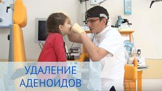Операция по удалению аденоидов в Детской клинике ЕМС(Известно, что самое распространенное ЛОР-заболевание у детей -- это гипертрофия аденоидов, явными признакам..., 2014-04-17T09:45:27.000Z)